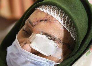 violence domestique iran